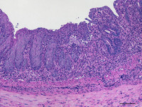 The infiltration of immune cells into the mucous membrane of the mouse colon was detected after chemical-induced colitis by means of hematoxylin and eosin staining.