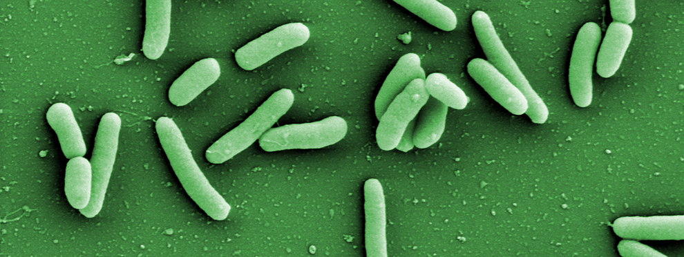 Electron micrograph of the pathogen Pseudomonas aeruginosa in green
