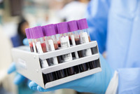 Several blood samples in a stand in the hands of a laboratory technician