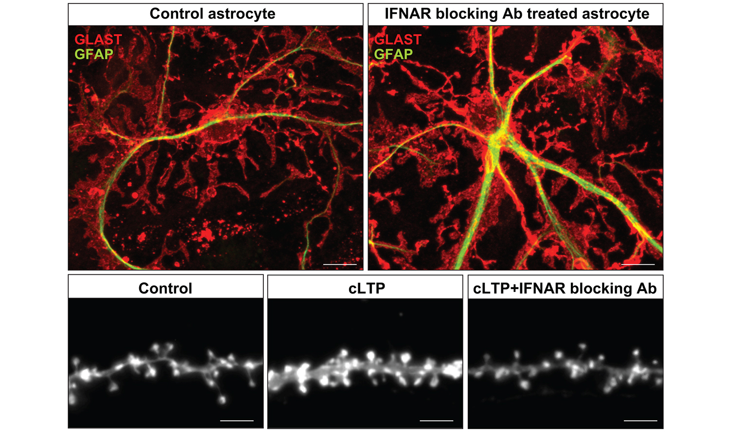 Astrocytes with (left) and without (right) interferon receptor signaling in the microscope image: If the interferon receptor signaling is missing, a significant increase of the glutamate transporter…