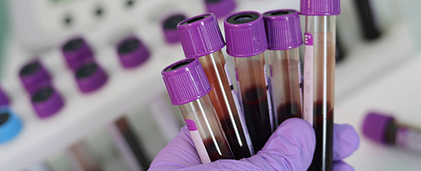 Blood samples in the laboratory, held in one hand, in the background lined up in a rack.